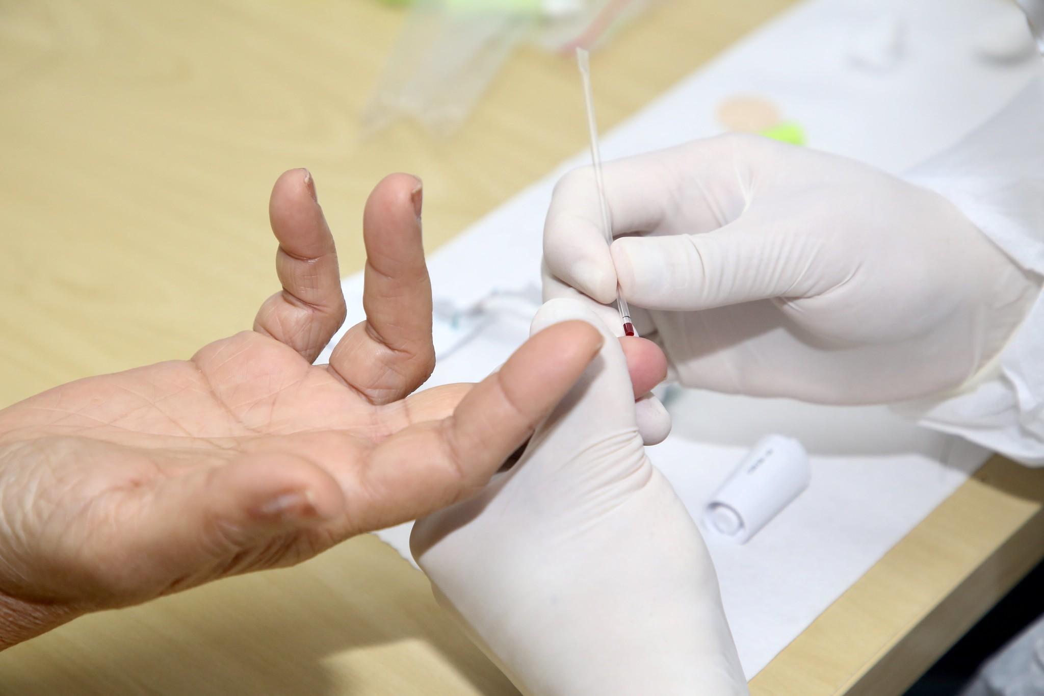 Farmácias já venderam mais de 1 milhão de testes rápidos da Covid-19 no Brasil