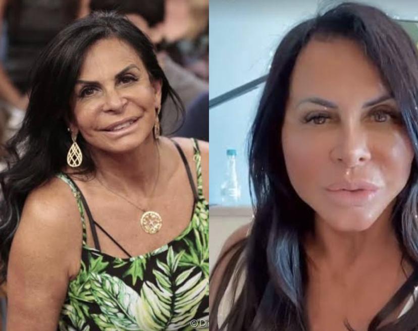Gretchen faz novo procedimento estético no rosto e internautas a comparam com Fofão
