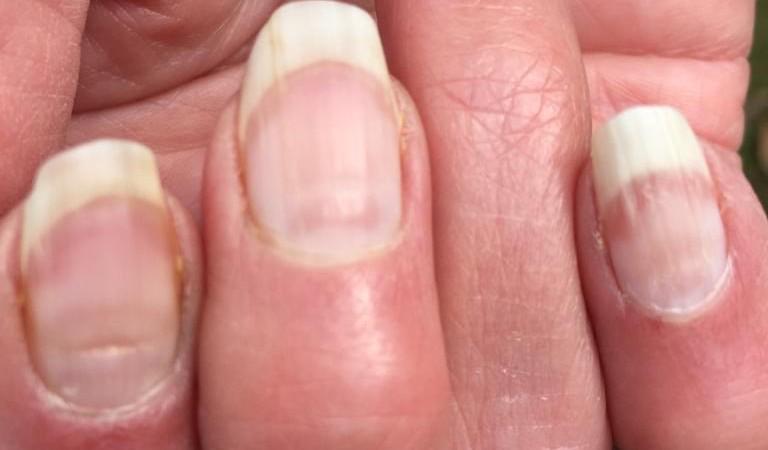 Sinais nas unhas podem apontar quem já teve Covid-19, diz estudo