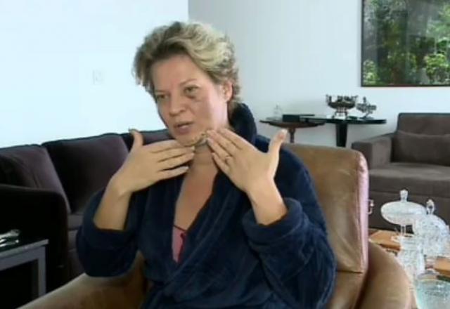BOMBA: Joice Hasselmann tem cinco fraturas no rosto e não se lembra do que houve, VEJA VÍDEO